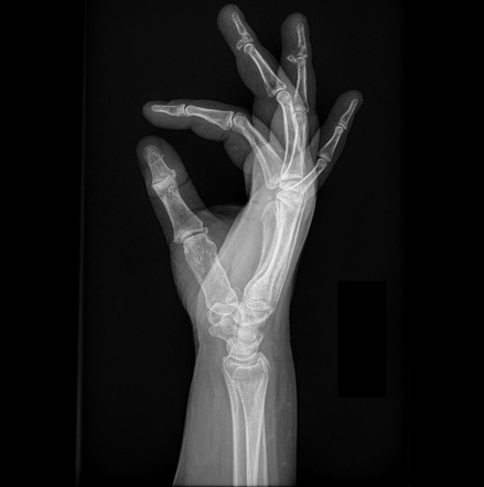 x-ray in New Jersey